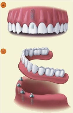 Armen Manssourian | Dental Implants in Glendale